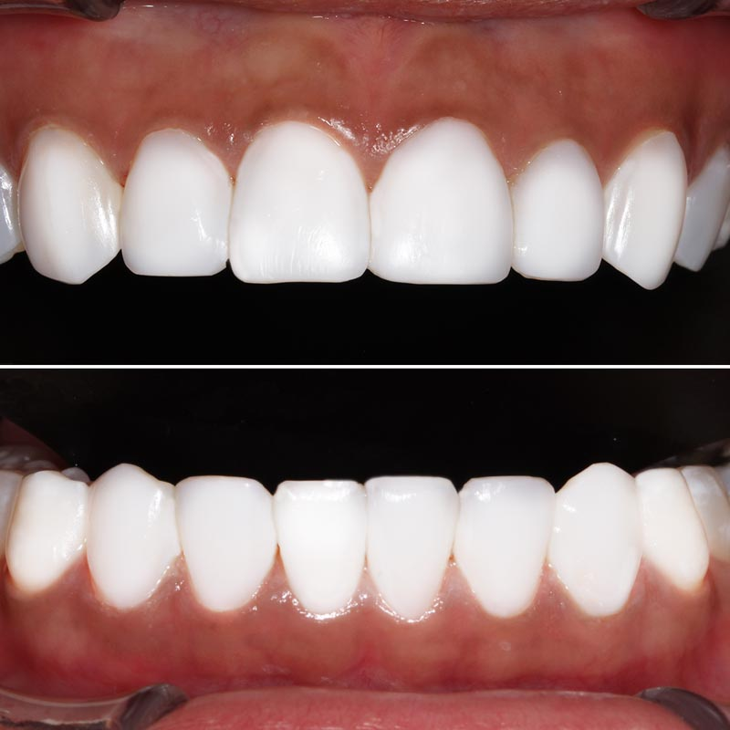 After image of composite veneer treatment