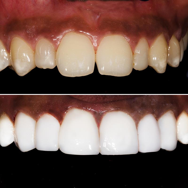 before and after images of upper teeth showing perfect composite veneers after treatment