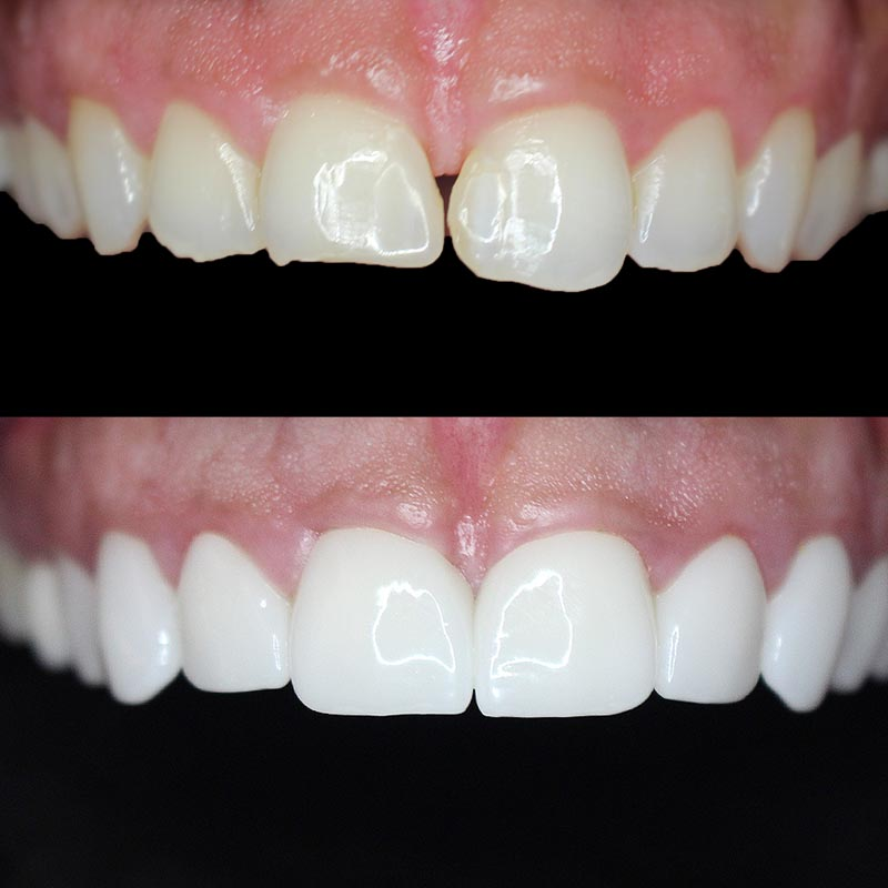 image of patient teeth before and after porcelain veneer treatment