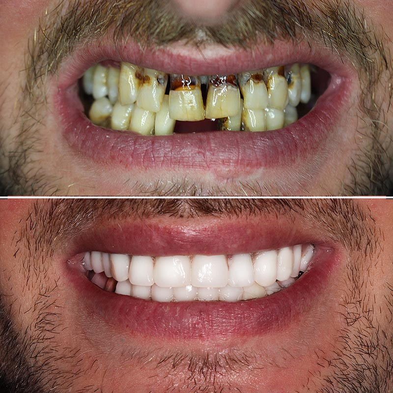 before and after image of all-on-four treatment at pro dental