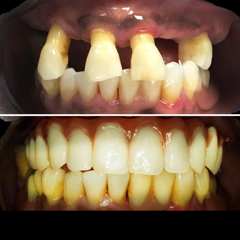 before and after image of all on four teeth