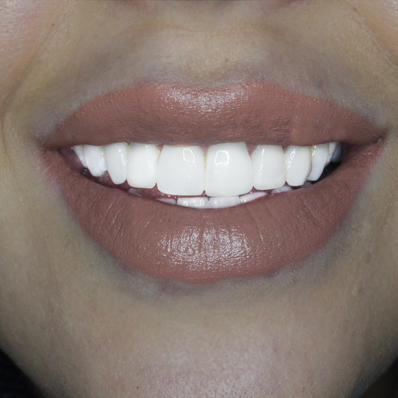 After image of composite bonding treatment