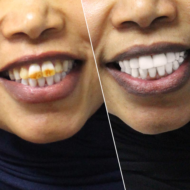 Before and after image of composite veneer treatment