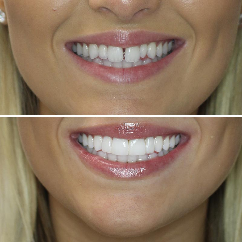 before and after image of composite veneer treatmentbefore and after image of composite veneer treatment