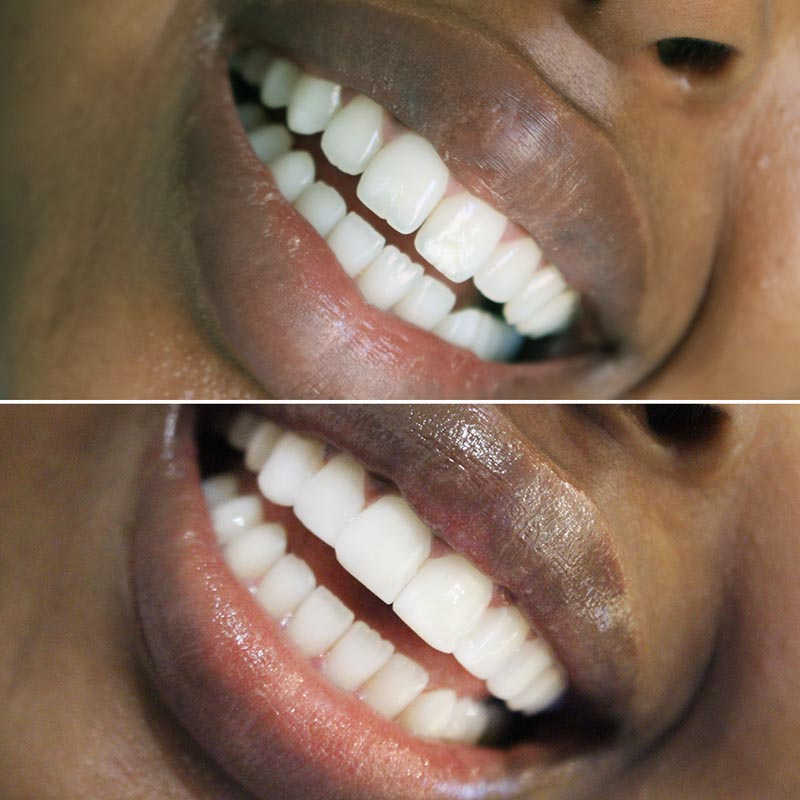 before and after image of composite bonding treatment