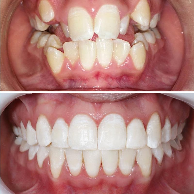before and after of teeth straightened by damon braces