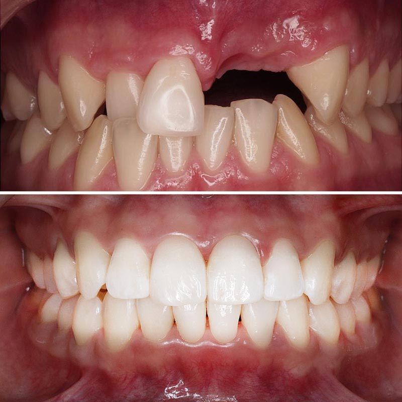 image of patient teeth before and after implant treatment