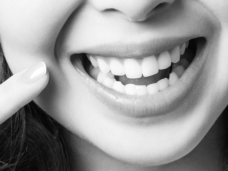woman smiling with open mouth and pointing at healthy teeth and gums