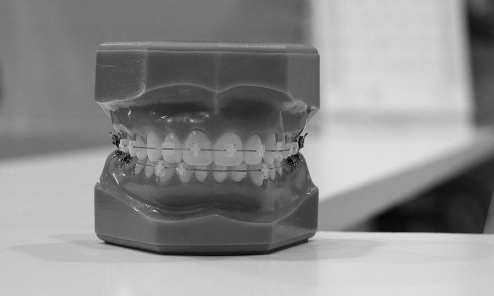 image of teeth and jaw replica with orthodontic braces attached