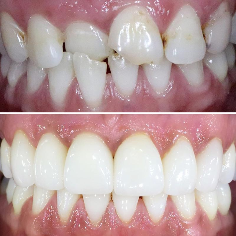 before and after image of teeth straightened by invisalign