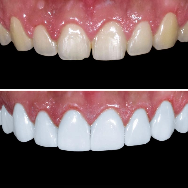 before and after image of upper teeth that have been corrected with porcelain veneers