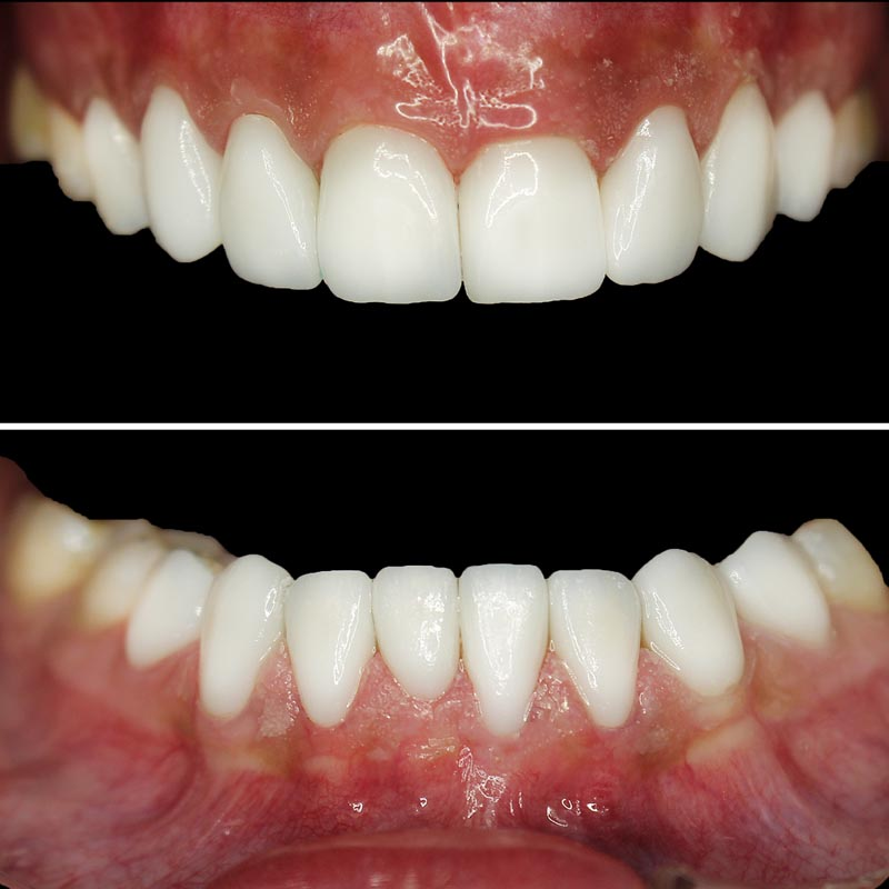 After images of upper and lower teeth that have been corrected with porcelain veneers
