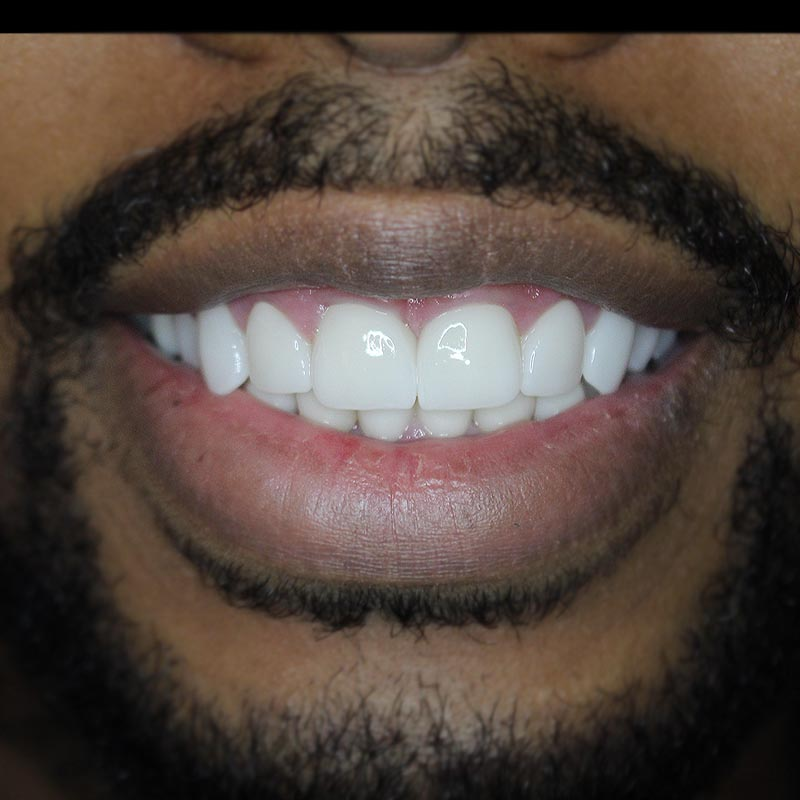 image of patient smile after teeth corrected with porcelain veneers