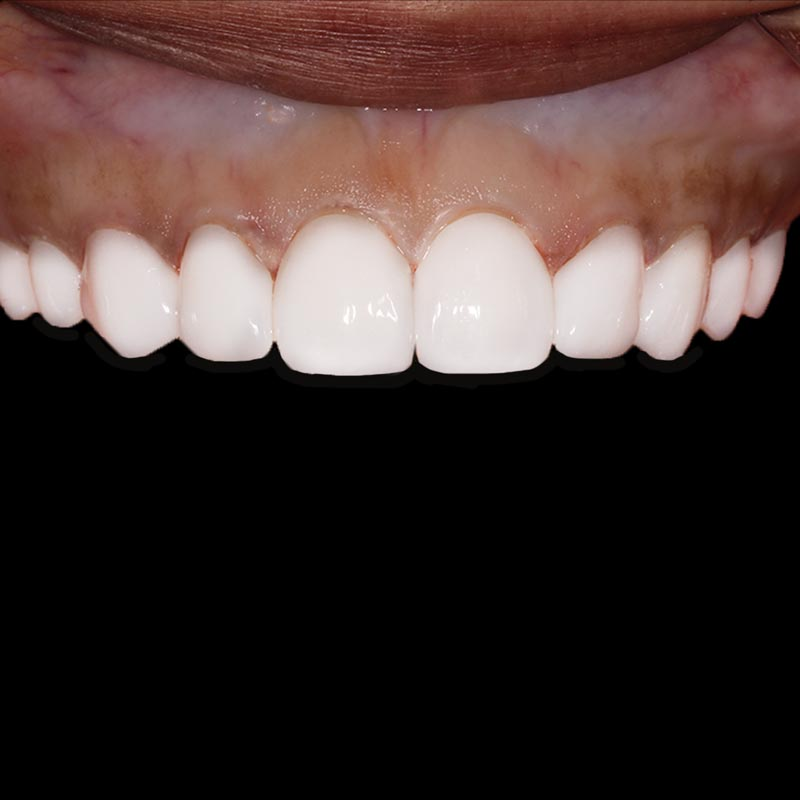 image of upper teeth that have been corrected with porcelain veneers