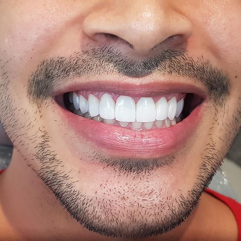 image of patient smile after porcelain veneer treatment