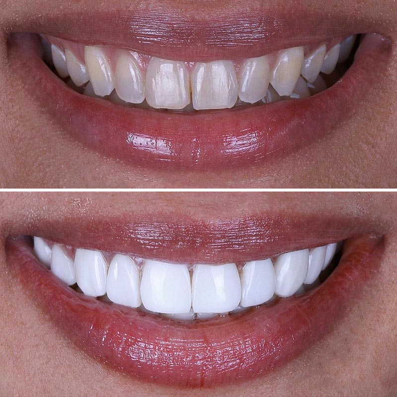 before and after image of patient smile with porcelain veneers